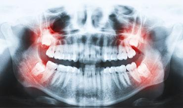 Panoramic X Rays