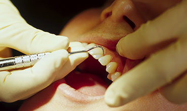 Periodontal Scaling Root Planing